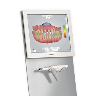 Fixed Orthodontic Appliance